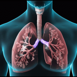 COPD Lung Disease